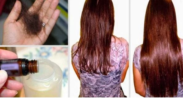 Add These Three Ingredients To Your Shampoo And Say Goodbye To Hair Loss Forever!