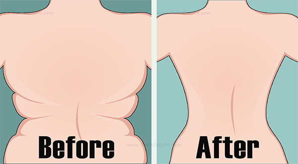 How To Get Rid Of Back Fat And Underarm Flab With These 4 Quick Exercises