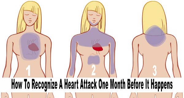 One Month Before A Heart Attack – Your BODY Will ALERT YOU – Here are 6 Symptoms