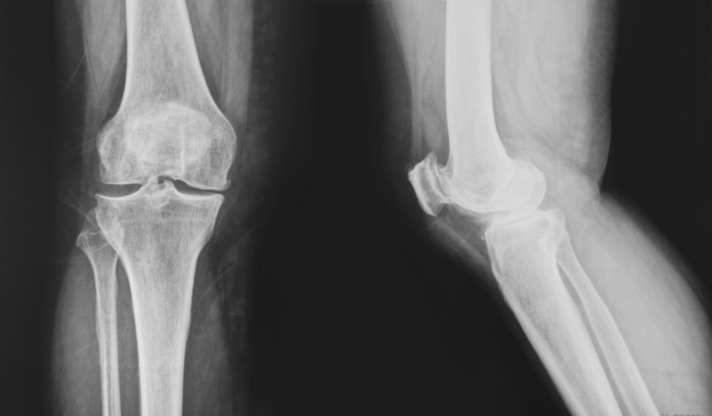 collection of x-ray normal knee