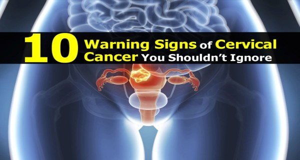 10 Warning Signs of Cervical Cancer You Shouldn't Ignore