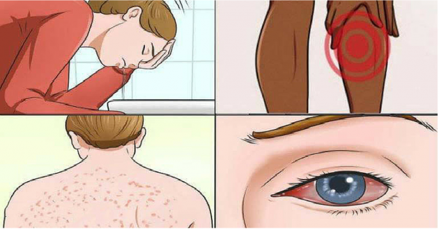 17 Signs Of Mold Illness And How To Tell If Youre At Risk
