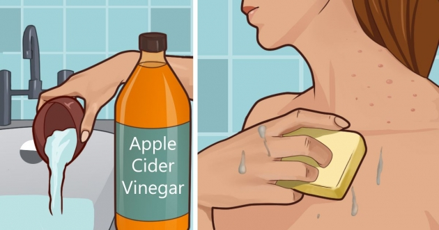 How to Use Apple Cider Vinegar for Eczema?