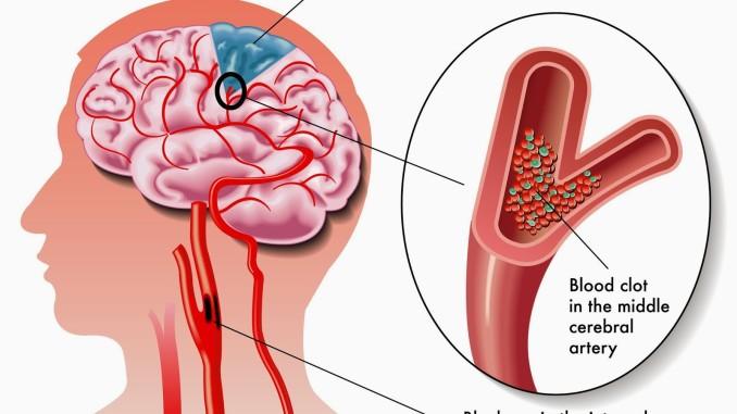 stroke-condition-678x381
