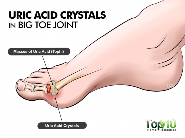 The Best and Fastest Way to Remove Uric Acid Crystals and Stop Joint Pain and Gout