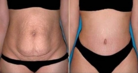 Prepare This Herb For 10 Minutes, Use It Only Once A Day And In Only 20 Days All Of Your Belly Fat Will Disappear!