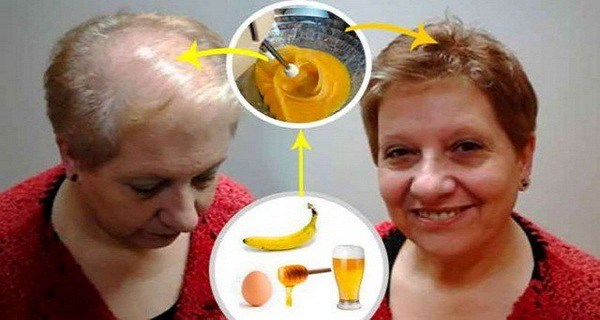 Recipe For Hair Growth, Even Doctors Are Speechless! ­