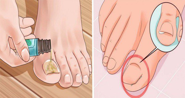 HOW TO GET RID OF A PAINFUL INGROWN TOENAIL AS FAST AS POSSIBLE WITHOUT SEEING A DOCTOR