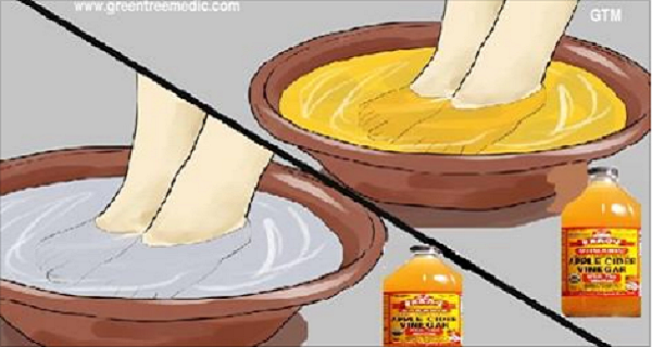 If You Soak Your Feet In Apple Cider Vinegar, This Is What Happens… That's Amazing!