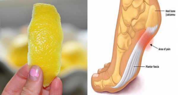 Lemon Peel Can Remove Joint Pain Forever