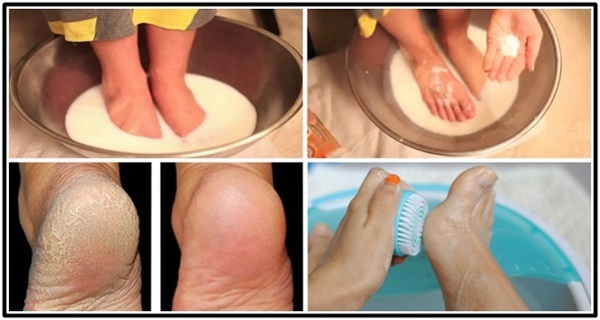 DON'T SPEND YOUR MONEY ON PEDICURE: USE TWO INGREDIENTS FROM YOUR KITCHEN AND MAKE YOUR FEET LOOK NICE