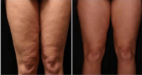 What She Spreads On Her Skin, Everyone Has at Home – But Nobody Uses It!
