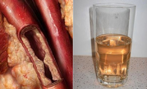 THIS DRINK WILL UNCLOG ARTERIES AND PROTECTS AGAINST HEART DISEASES