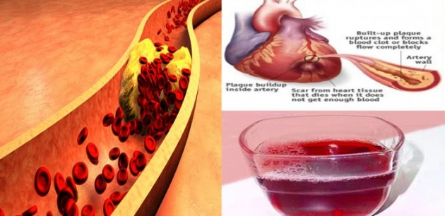 15 Foods That Will Clean Your Arteries Naturally And Protect You From Heart Attacks