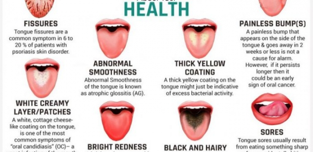 What Does Your Tongue Says About Your Health