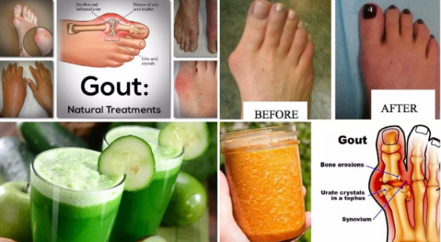 DOCTORS HAVE CONFIRMED!!! SAY GOODBYE TO ARTHRITIS WITH THE HELP OF THIS ULTIMATE REMEDY!!!