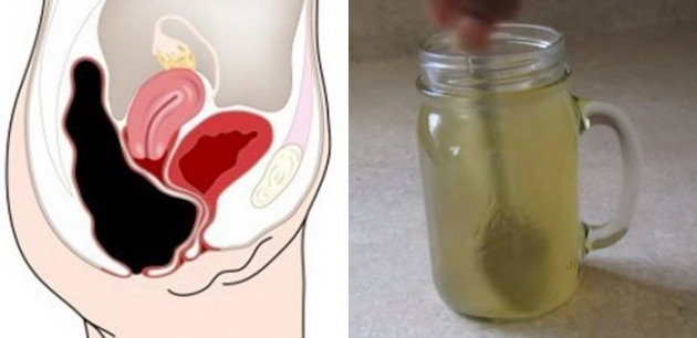 This Simple Drink Removes Pounds of Toxins from Your Colon!