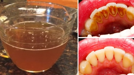 Study: This Natural Tea Removes Plaque Better Than Commercial Mouthwash