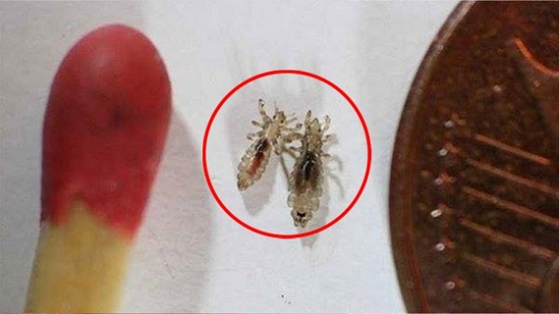 Doctors Won't Tell You This – Cheap Way To Get Rid Of The Head Lice Almost Instantly