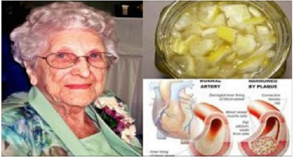 My Grandmother Is 85 And She Never Had High Cholesterol Or High Blood Pressure And Never Took Any Pills – This Is The Reason Why…