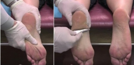 Say Goodbye To Troublesome Foot And Heel Pain