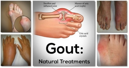 Say Goodbye To Gout Forever With This Powerful Natural Treatment !