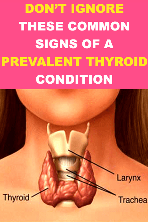 Don't ignore these common signs of a prevalent thyroid condition