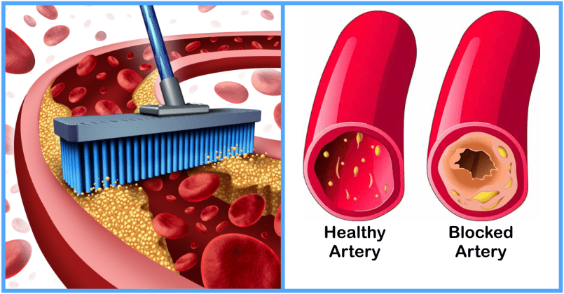 Do We Make Cholesterol Naturally In Our Bodies